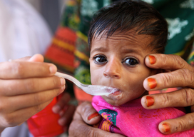 Nutrition support in Pakistan - 2016