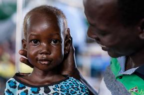 Support for malnutrition in South Sudan - Nyajime Guet - 2015 & 2016